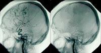 Brain Death2