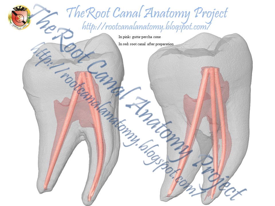 The Root Canal Anatomy Project