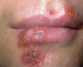 hpv symptoms in males: