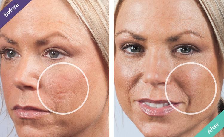 Face Pimples Treatment Home : Vagina Pimple A Huge Female ...