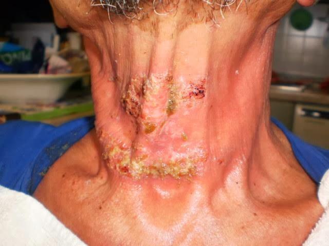 Quale calunnia atopic dermatite con