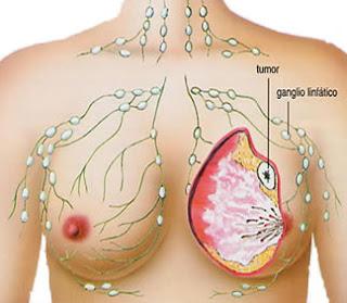 Pengobatan Penyakit Kanker secara alami tradisional, Obat alami untuk Mengobati Kanker Payudara, Pengobatan Alami sakit Kanker Payudara