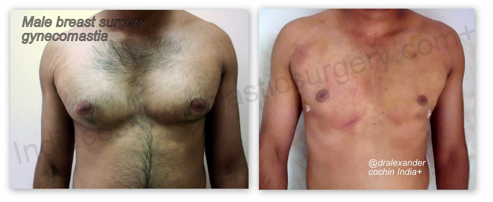 Surgically enlarging male breasts