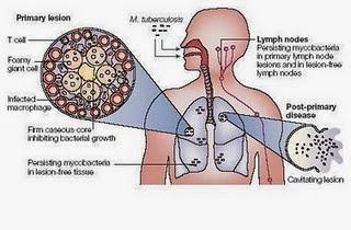 Cara Mencegah Pe3nyakit TBC