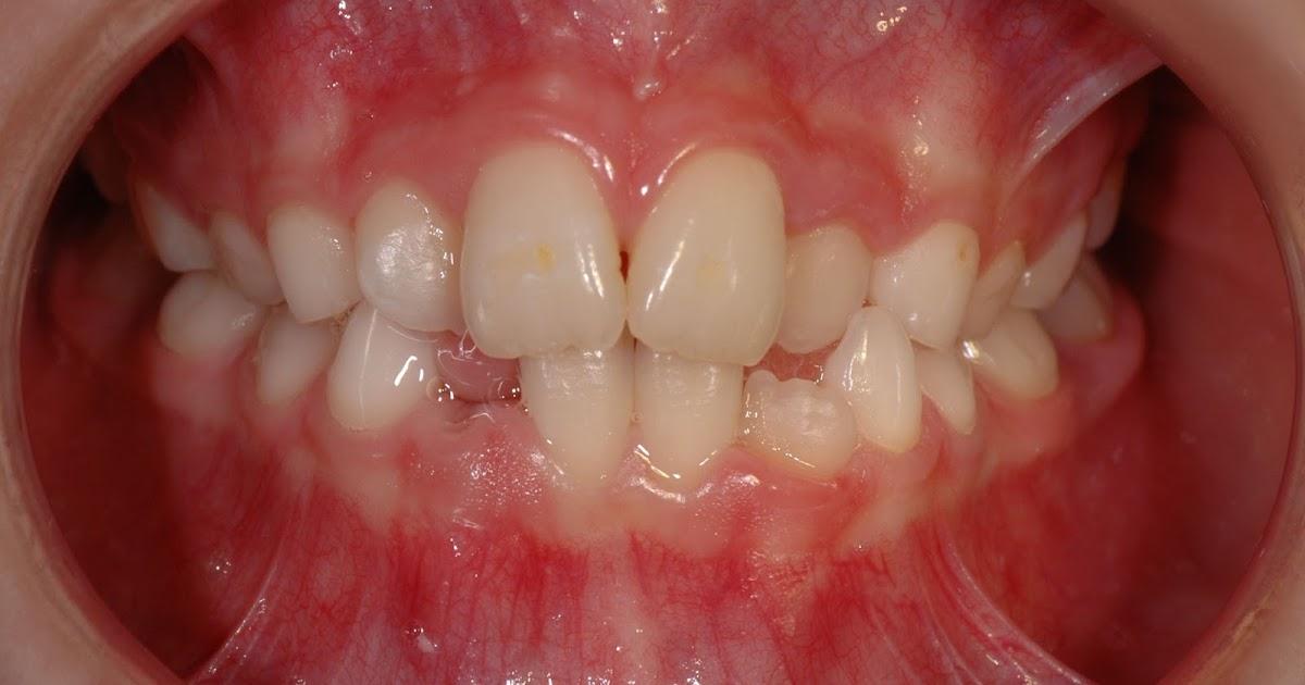 Ortodoncia preventiva for W de porter ortodoncia