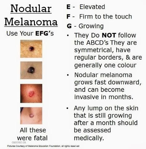 More Melanoma!