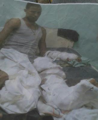 Joven accidentado de Yaque pide ayuda para operación, está interno hospital San Juan