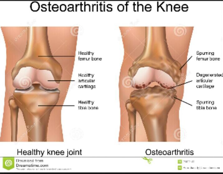 osteoarthritis-sakit-sendi-lutut