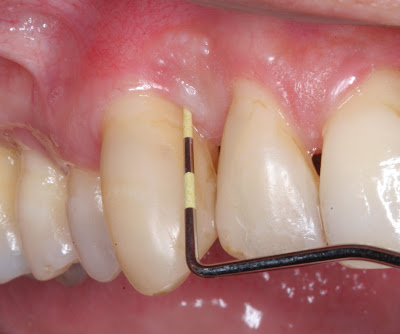 Periodontal Surgery Cost