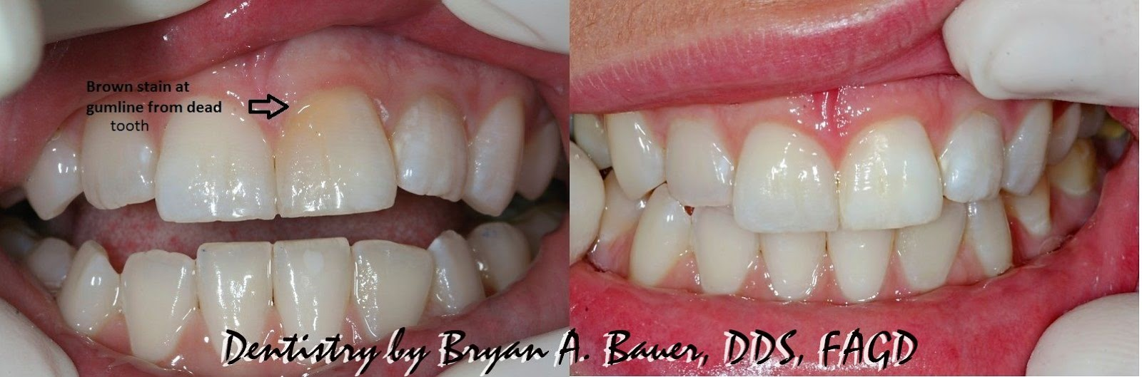 crack in front tooth symptoms