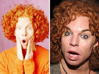 Carrot top facial surgery