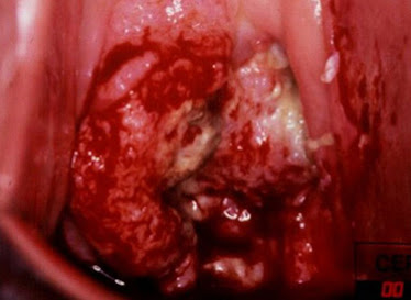 Cuello uterino canceroso avanzado