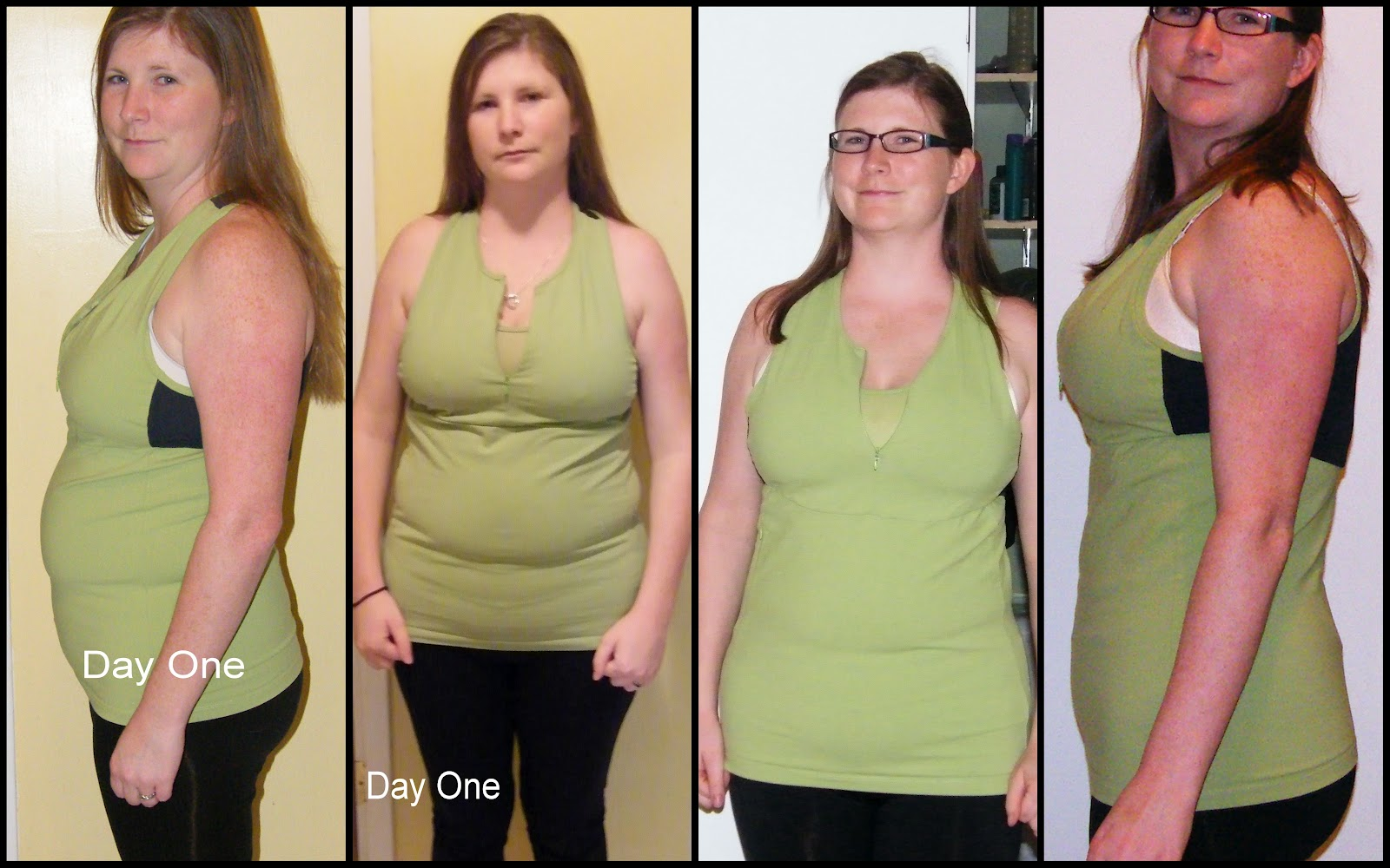 will venlafaxine cause weight loss