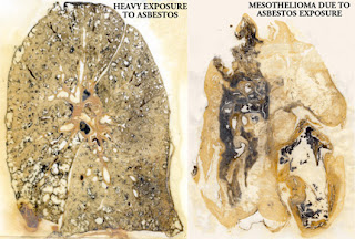 mesothelioma asbestosis, mesothelioma, asbestosis cancer,  asbestosis disease, symptoms of asbestosis, asbestosis lung cancer, asbestosis exposure, what is asbestosis, asbestos exposure, asbestos symptoms, asbestosis causes, asbestosis compensation, asbestosis exposure, asbestosis pulmonar, asbestosis treatment, pulmonary asbestosis