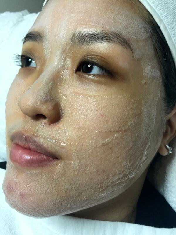 Simply Aesthetics Oxycious Facial Treatment Review Lunarrive Singapore Lifestyle Blog