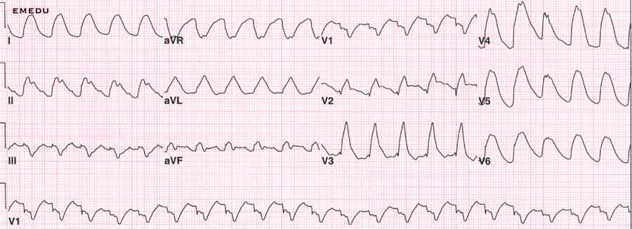 EKG-Differentialdiagnostik der Breit-QRS-Komplex-Tachykardien