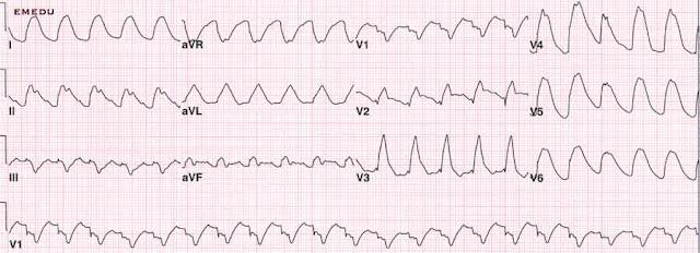 Wide komplexe Tachykardie EKG Streifen