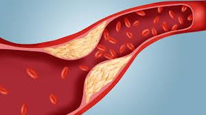 من الذي يجب أن يقوم بفحص الكوليسترول؟