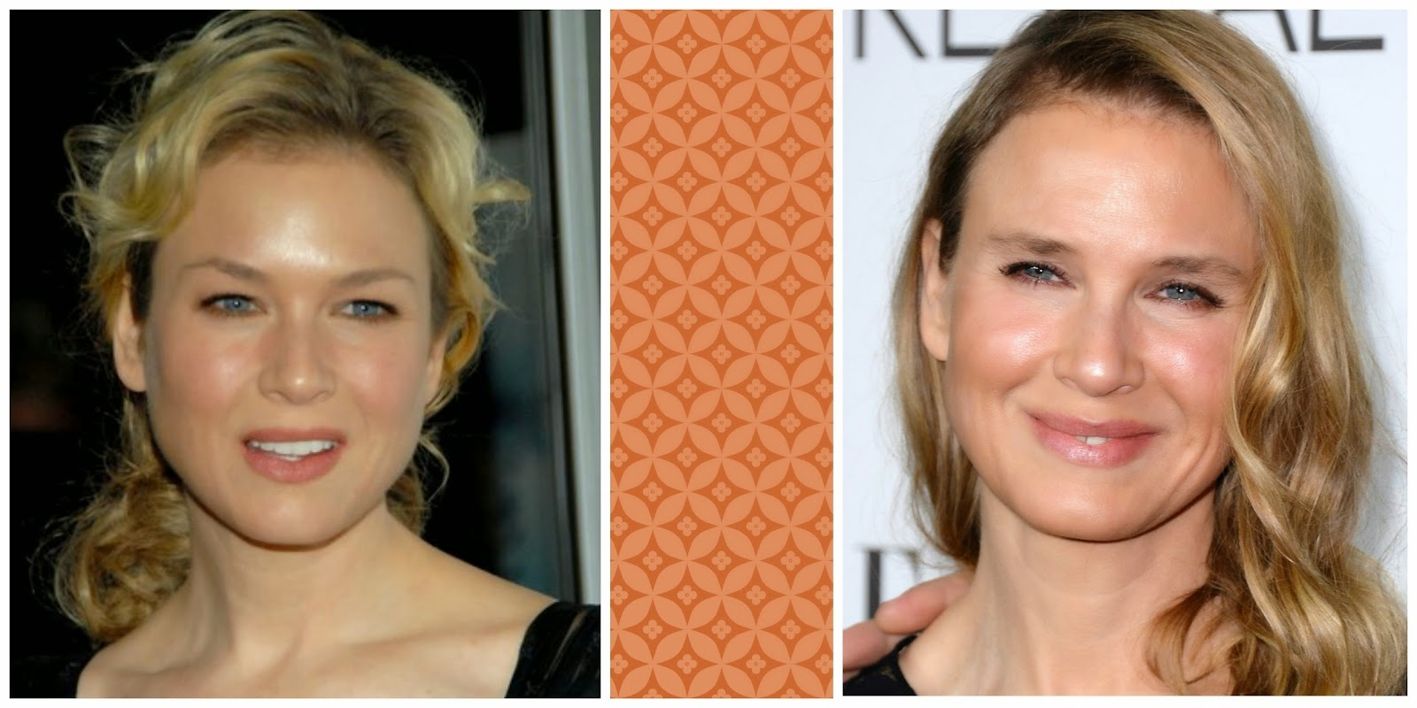 René Bridget Jones edad bisturí