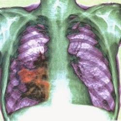 Câncer de pulmão, mortes desnecessárias