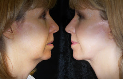 Removes jowls naturally and without surgery