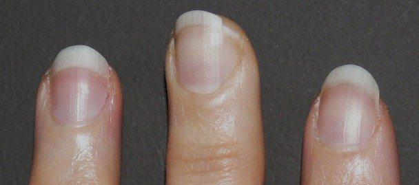 The Fastest Way To Achieve Long Strong Naturally Beautiful Nails Is Start With That Are Damage Free By Shortening Your Using