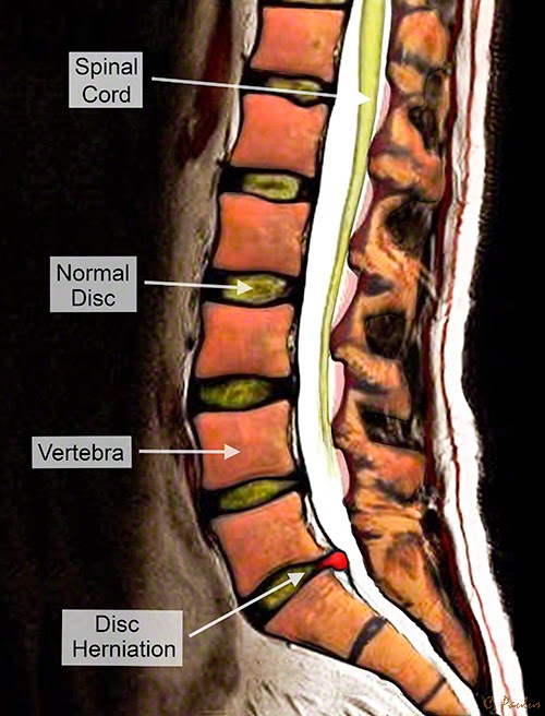 Sagittal Color MRI of a Lumbar Disc Herniation and Spinal Anatomy