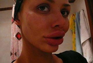 bibir wanita gadis cewek seksi yang besar sekali