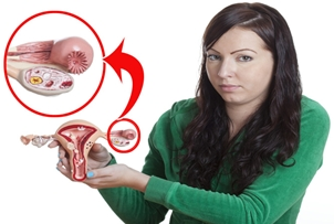 Cara Mengobati Kista Ovarium Tanpa Operasi