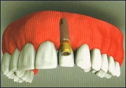 Maryland Dental Implants