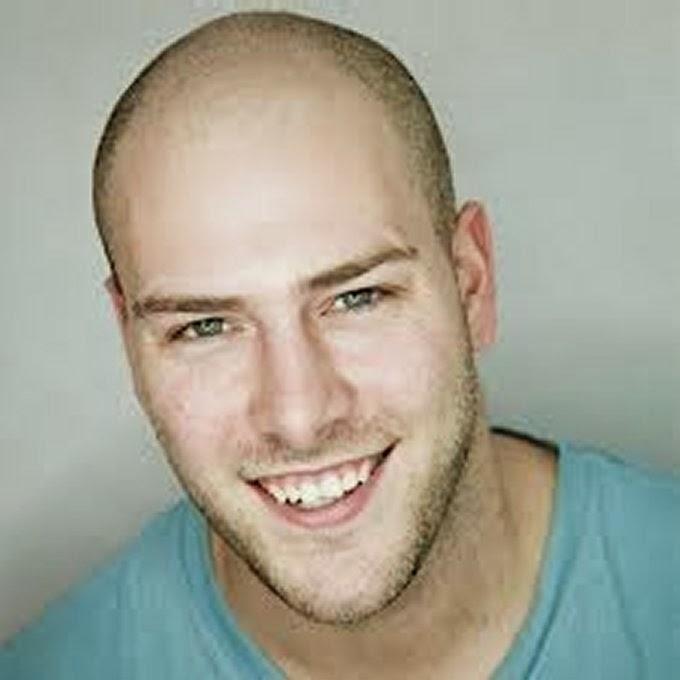 hair styles balding men