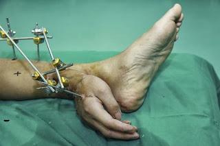 para-dokter-cina-bloglazir.blogspot.com