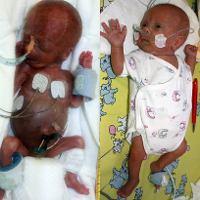 Kelahiran Prematur dan Bayi Berat Lahir Rendah