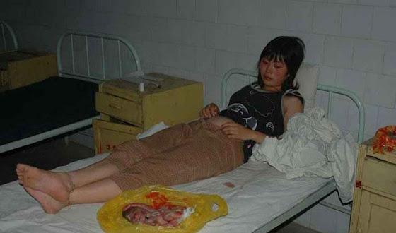 Mãe forçada a abortar observa horrorizada os restos de seu filho.