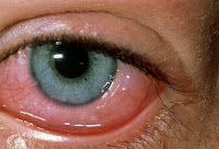 Red Eye Symptoms
