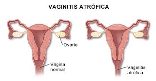 Cara mengobati radang vagina ( vaginitis ) akibat infeksi yang aman dan sudah terbukti ampuh manjur dan mujarab | apa itu vaginitis ?, bagaimana gejalanya dan cara agar tidak mengalami vaginitis ?, serta cara mengatasi gejala vaginitis yang baru?, juga cara yang ampuh dalam mengobati radang vagina ( vaginitis ) hingga yang sudah parah sekalipun sembuh secara alami dengan cepat yang aman tanpa efek samping apapun.