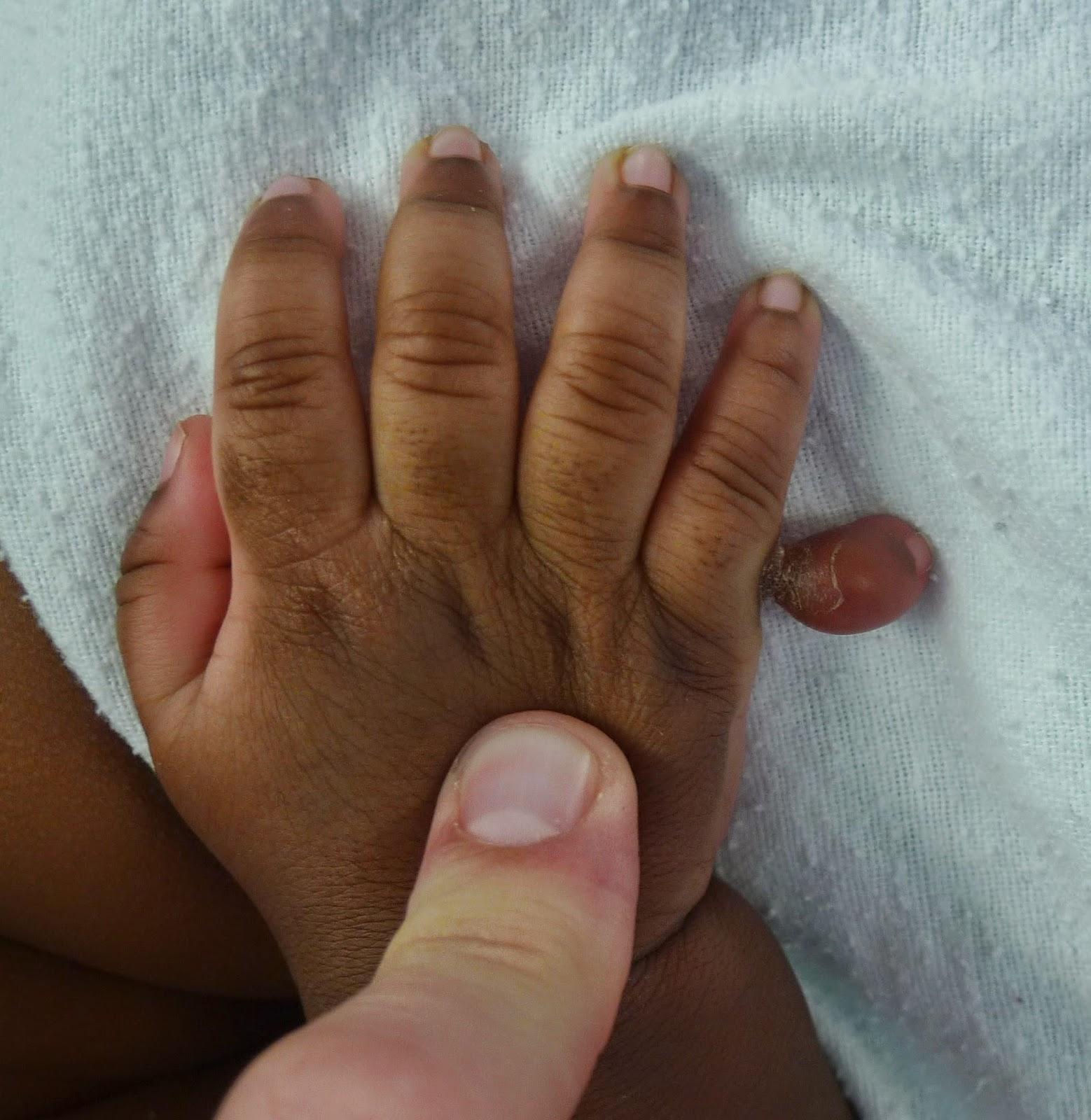 Lindberghs tendon thumb hand