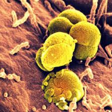 obat keputihan akibat bakteri