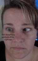 Looking to the side with 6th Nerve Palsy