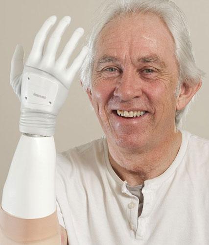 Chris Taylor menunjukkan tangan bioniknya.