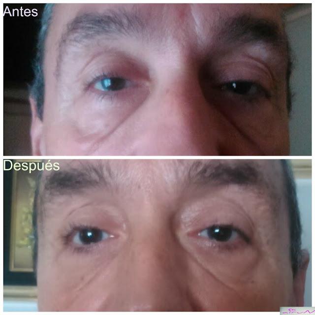 resultados hidralove ojos alove