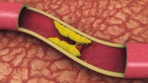 penyebab kolesterol tinggi dan cara pencegahannya