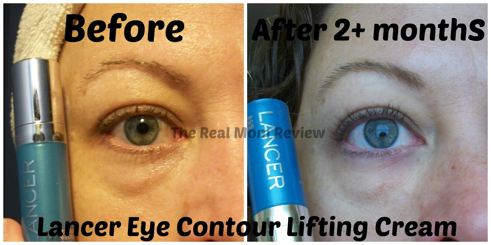Difference between eyes before and after Lancer Eye Cream