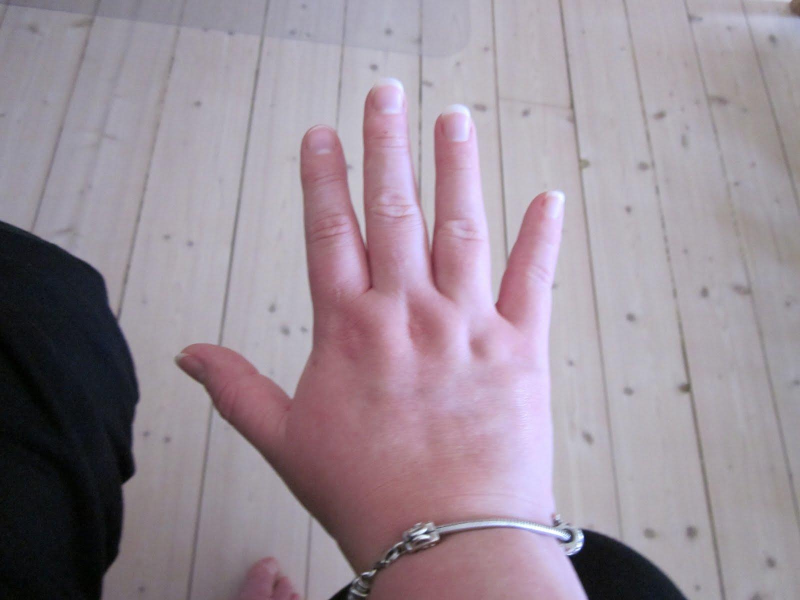 tykke fingre