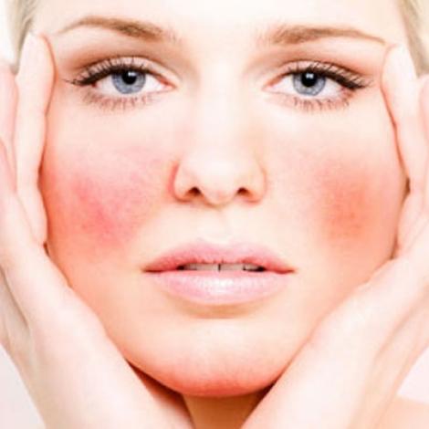 Al Natural Acne Treatment For Senitive Skin