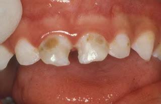 """Caries en dientes de """"leche"""" (primarios-temporarios)"""