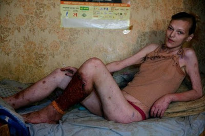 wanita+ini+daging+kakinya+mulai+membusuk