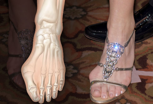 You Have a Bunion. So What Shoes Can You Wear?