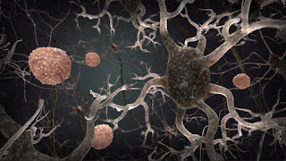 Age-Related Cognitive Decline Tied To Immune-System Molecule