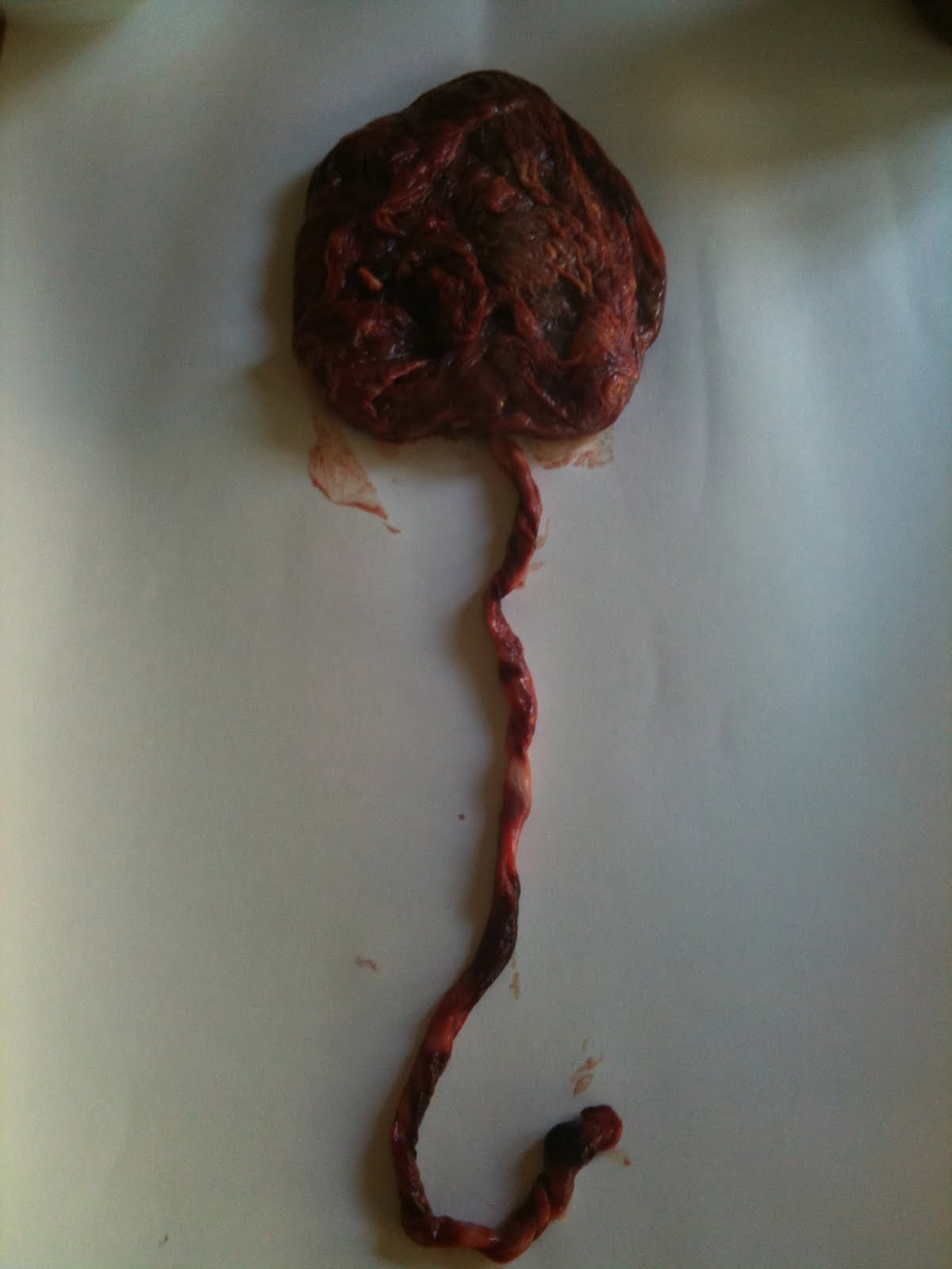 On Being a Mother: The placenta is coming out of the freezer
